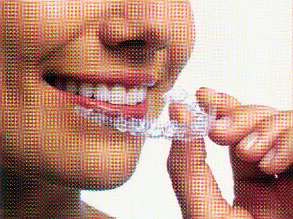 Invisalign Guard
